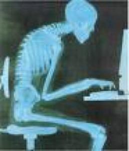 poor-posture1